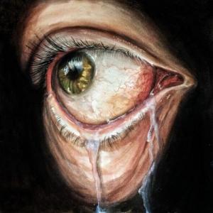 Prognoise - Lacrimal